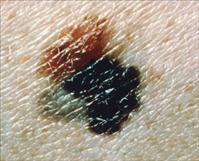 Melanoma skin cancer- credit: National Cancer Institute unknown photographer - PD